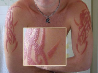 Black henna scars picture from abc news for Tattoos and eczema